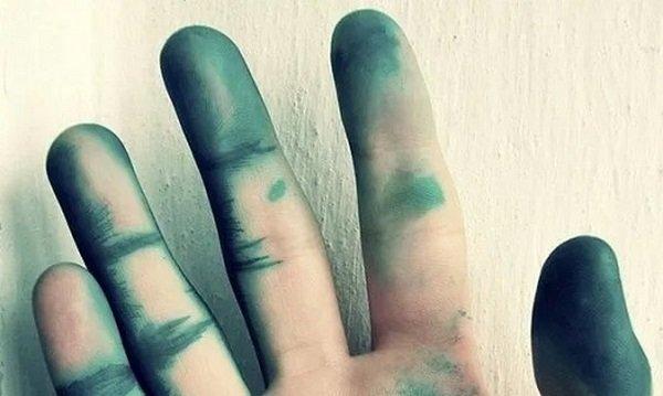 Зеленка на пальцах